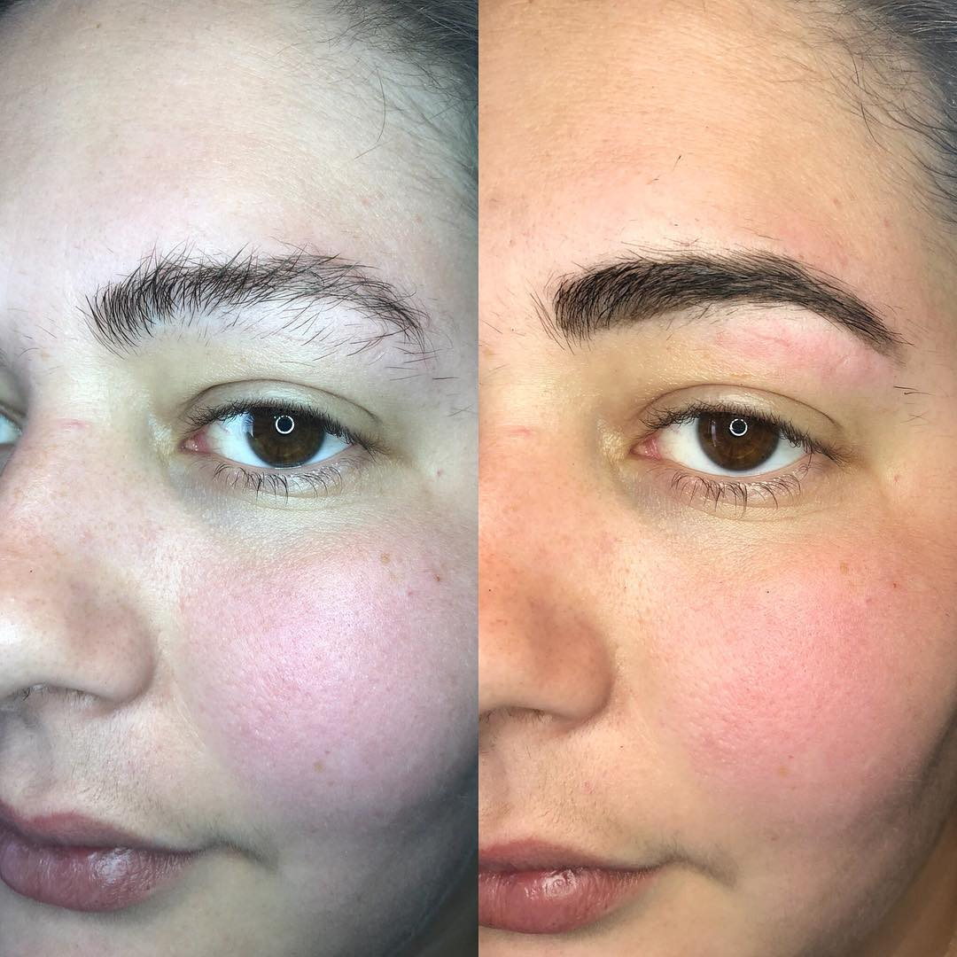 Brow Savvy - HD Brows - Before and After 4