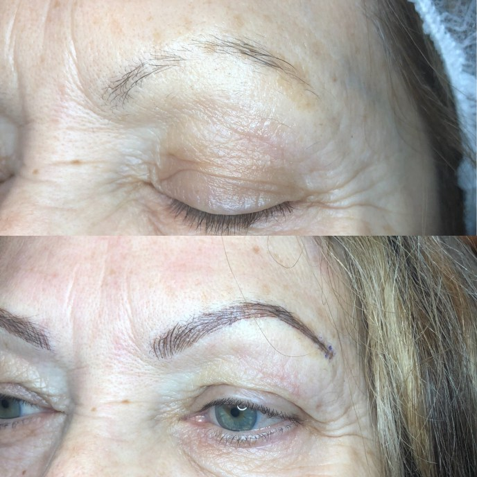 Brow Savvy - Microblading - Before and After 3