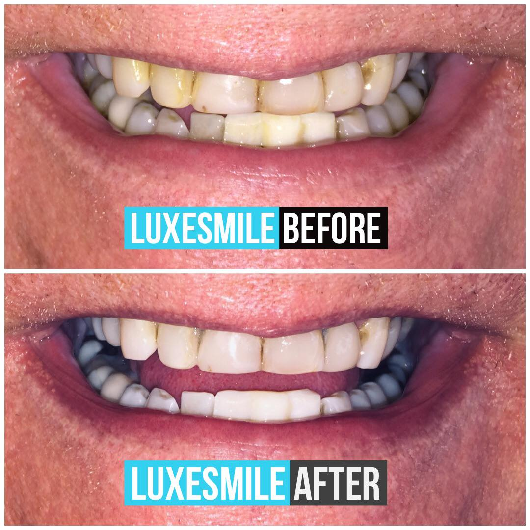 teeth whitening by luxesmile before and after 2